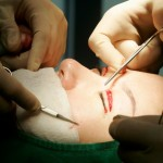 Korea's Deadly Fixation On Plastic Surgery