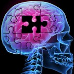 The effects of Alzheimer's on our brain