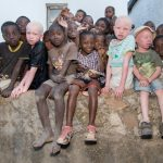 Albino Tribe Butchered for Black Magic Medicine