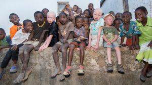 Albino Tribe Butchered for Black Magic Medicine