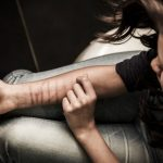 Self-harm in Girls and Young Women